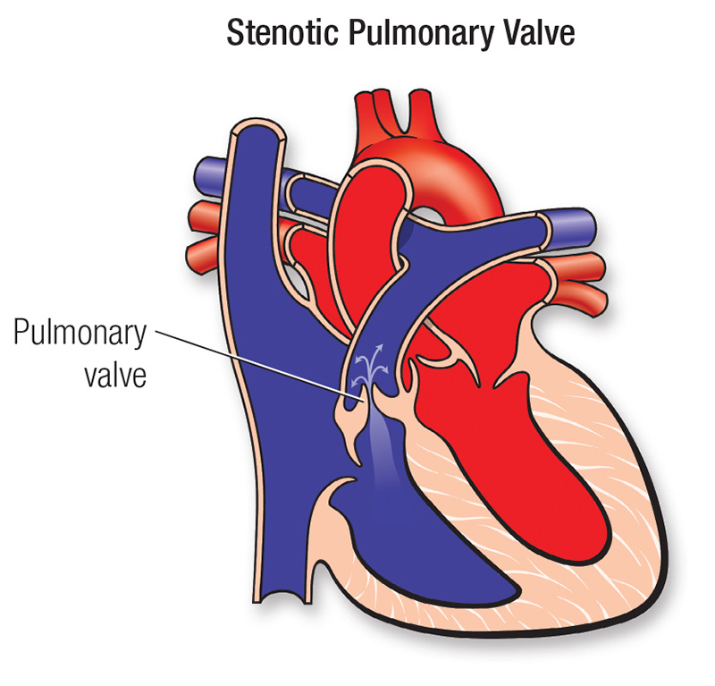 pulmonary stenosis diagram