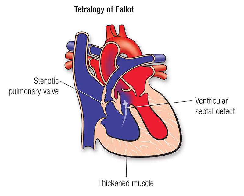 Tetralogy of Fallot diagram