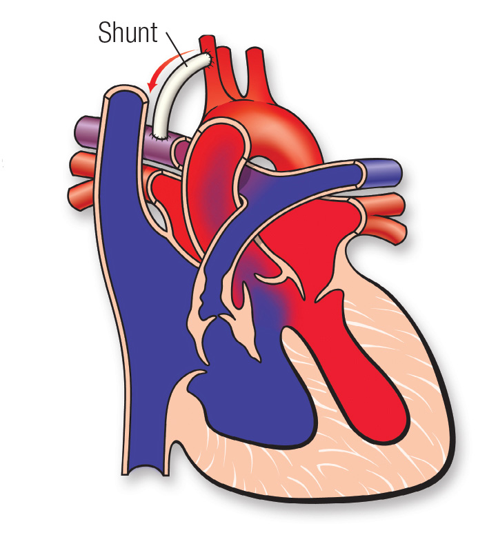 Tetralogy of Fallot shunt diagram