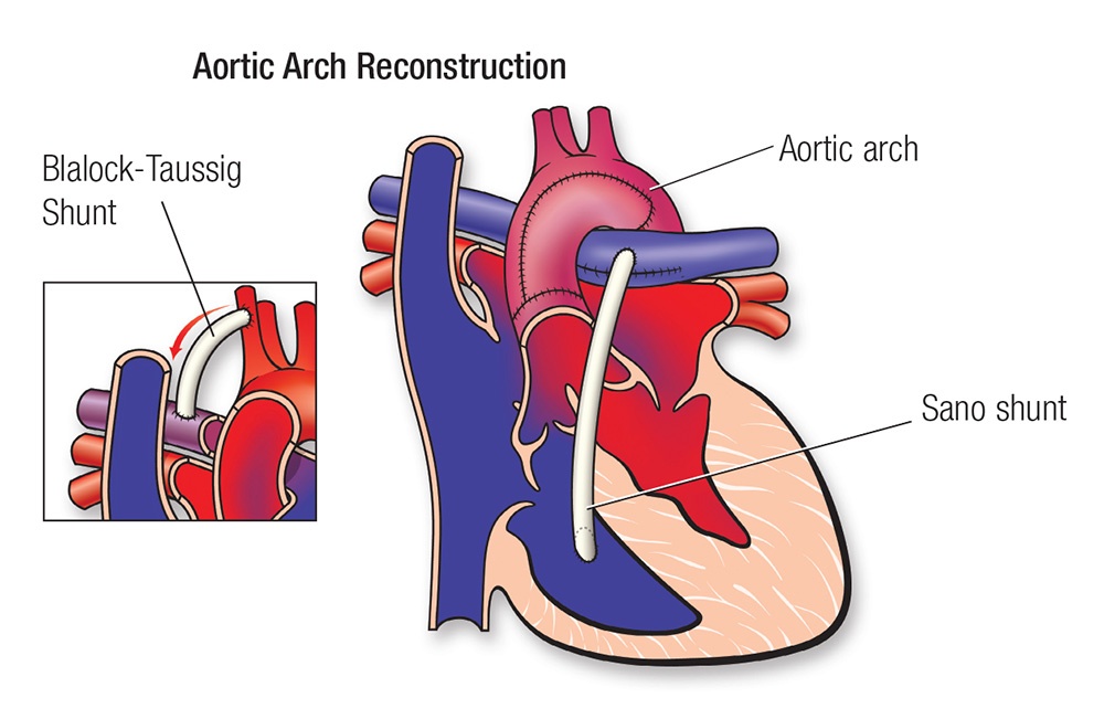 Aortic arch diagram